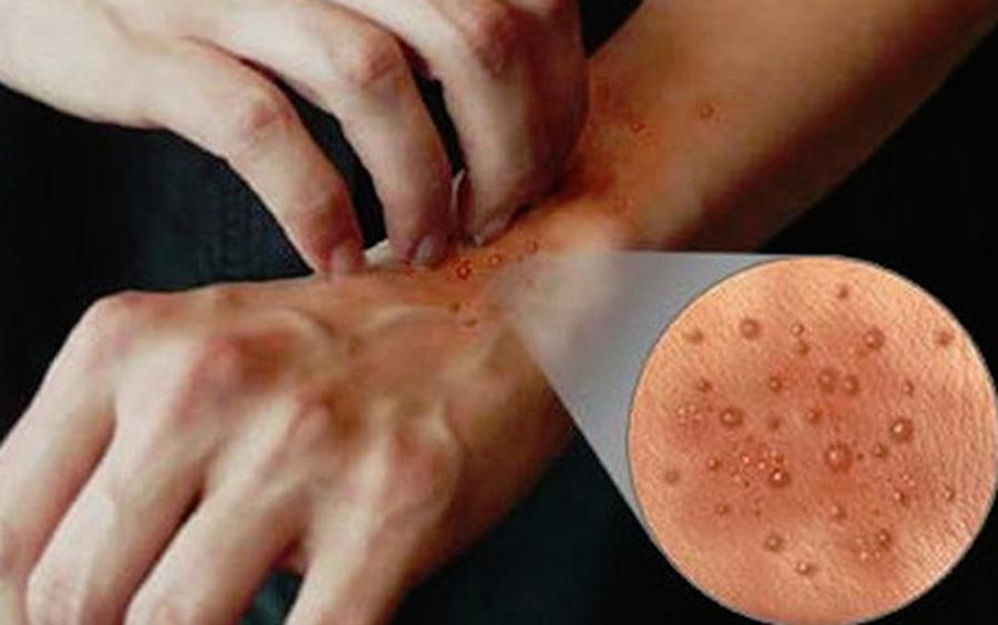 Alergii, dermatite și chiar ciuperci! Riști îmbolnăvirea, dacă faci această mare greșeală, des întâlnită mai ales în rândul femeilor